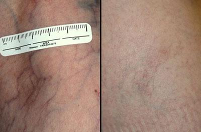 درمان-واریس-عنکبوتی-با-لیزر