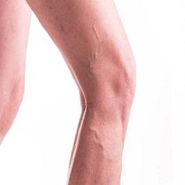شناخت علائم و درمان انواع واریس خفیف و شدید پا (طنابی و شاخه ای)